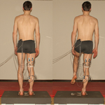 Muscle activation patterns after anterior cruciate ligament injury