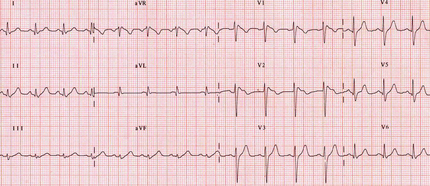 ECG at the admission with Brugada type I pattern.