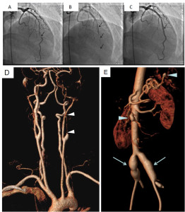 Fig. 1. Coronary angiography (A -C) showing a tight narrowing of the left anterior descending coronary artery (A, arrow), (B) a tear (dissection) of the coronary artery progressing to total occlusion upon passage of the guide-wire (B, arrows), and successful recanalization after stenting (C, arrow). Magnetic resonance angiograms with 3D reconstruction are shown in panels D – E. A long dissection of the left internal carotid artery was seen (D, between arrowheads), aneurysms of both common iliac arteries (E, arrows), and aneurysms the of superior mesenteric artery (E, lower arrowhead) and of the splenic artery were found (E, upper arrowhead).