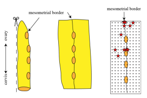 Fig. 2. Pacemakers in the rat uterus. In the left diagram, it is shown how the uterus was cut open. The second diagram shows the opened uterus sheet with the mesometrial border running down the middle. In the right panel, every red star indicates the location of a pacemaker. As you can see, most of them are located close to the mesometrial border. Every black dot indicates the location of 1 of the 240 recording electrodes.