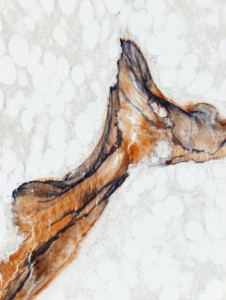 Fig. 2. Detection of aluminum in the calcified bone of an exostosis, microscopic section. Bone is stained in light orange and the aluminum bands are deep blue. Solochrome azurine staining, original magnification: 200X.