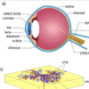 Can mathematics help defeating acquired blindness?