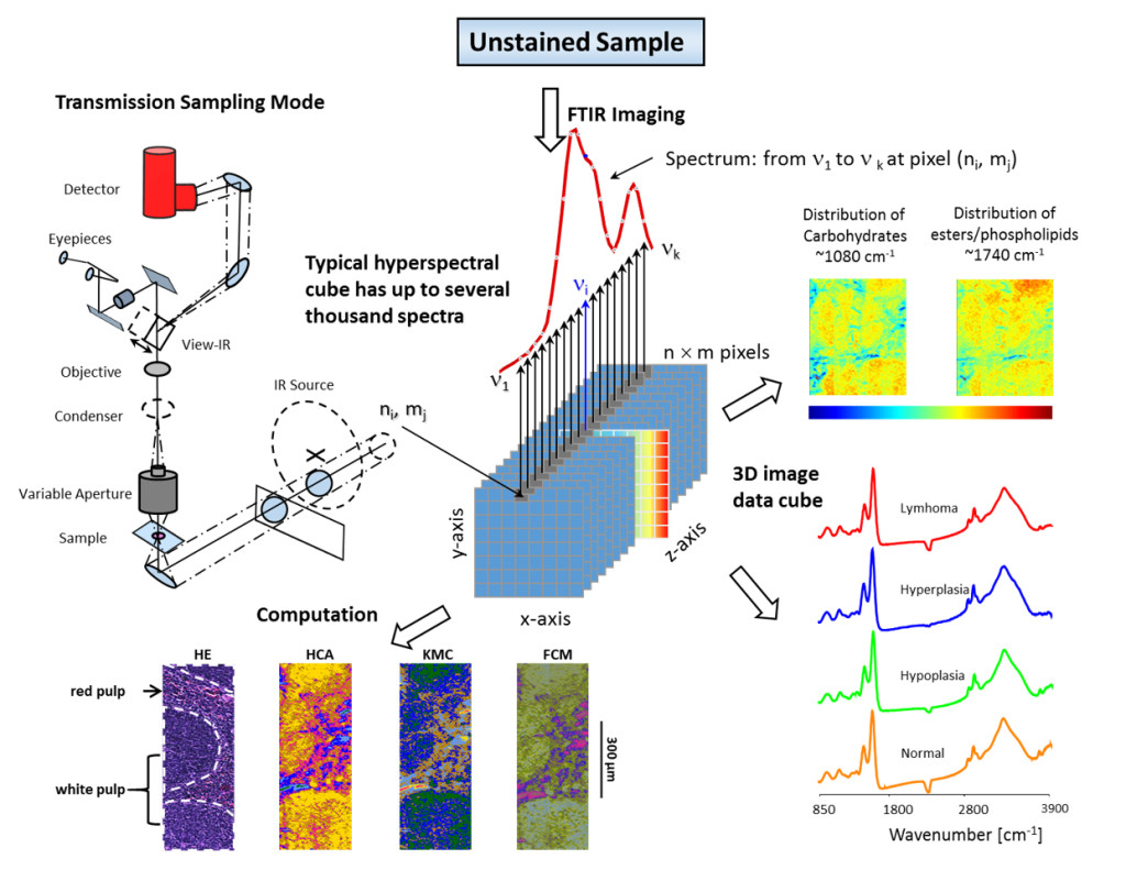 Schematic illustration of a model of hyperspectral images and the morphological integrity after IR microscopic imaging measurements. A single acquisition of an unstained sample records thousands of images across numerous wavelengths, resulting in an image stack forming a three-dimensional (3D) image data cube. The challenges to analyze MIR microscopic imaging data are that: (a) the obtained image data cube may be viewed as spatially located spectra, with the processing tools of classical spectroscopy being applied to single spectra; (b) the data may be viewed as images, with image-processing tools being used to extract higher-quality spatial information. Thus the combination of MIR microscopic imaging, signal and image processing and histomorphological investigations makes MIR microscopic imaging a multidisciplinary discipline.