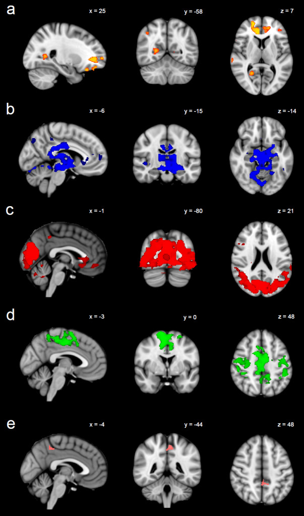 Illustration of sertraline-induced (a) decreases in functional connectivity between orange regions and the default mode network; (b) decreases in functional connectivity between blue regions and the executive control network; (c) decreases in functional connectivity between red regions and the visual networks; (d) decreases in functional connectivity between green regions and the sensorimotor network; (e) increases in functional connectivity between pink regions and the auditory network.