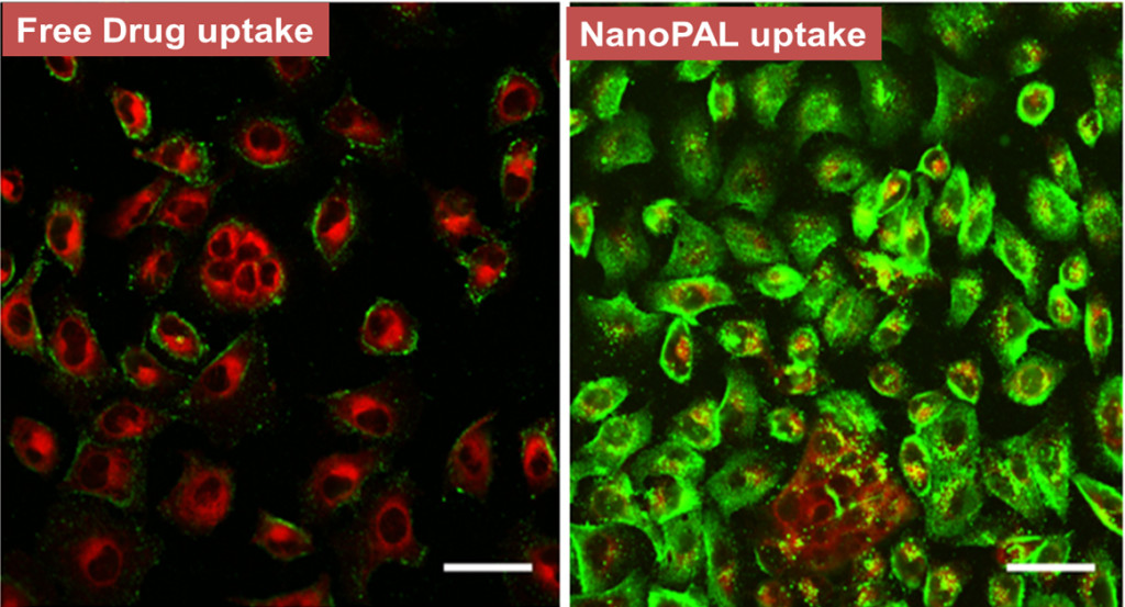 The cancer cells in the confocal images above show the uptake pattern of the two drugs, the photosensitizer (red) and the anti-VEGF antibody (green). The drugs delivered as conventional cocktail (on the left) show minimal antibody uptake, where as a custom-designed nanoPAL delivery shows a significant increase in the availability of the drugs inside the cell. Scale bars, 20 um.