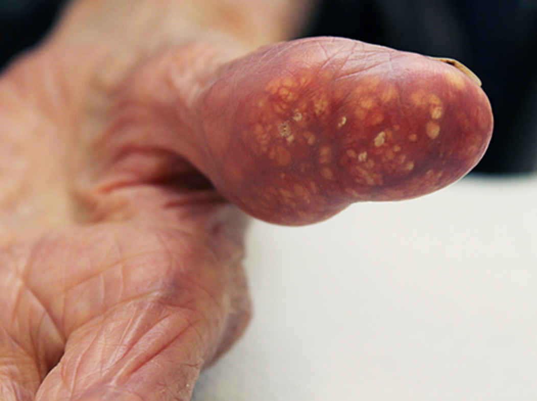 Changing The Image Of Gout