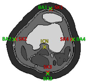 Fig. 2. Positions of inner and outer knee voxels whose temperatures are used in the training dataset. The positions are marked with crosses on knee model slice in the level of the intercondylar notch. ICN – intercondylar notch, SK – skin, BA – bandage (1 – anterior, 2 – medial, 3 – posterior, 4 – lateral).