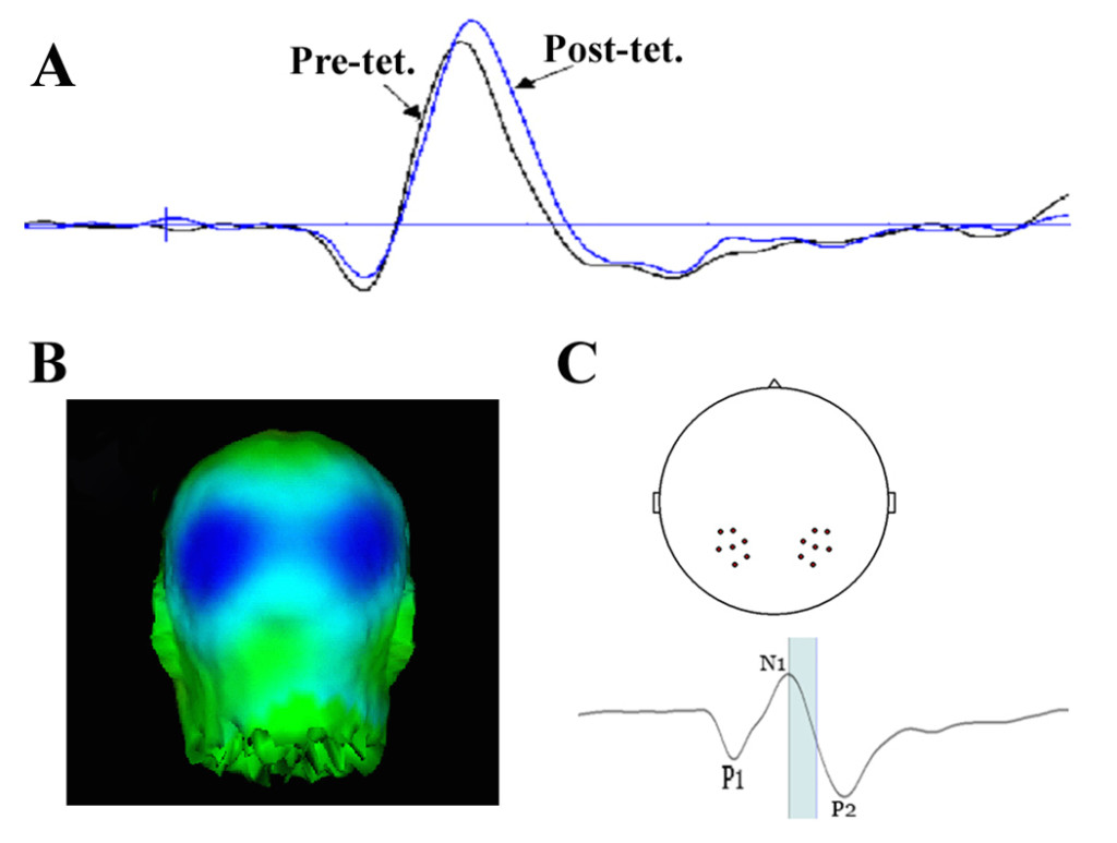 (A) Pre- and post-tetanus average evoked potentials recorded over the occipital cortex. (B) Distribution of the potentiated component. (C;upper) Cluster of electrodes centred around ~P7 and ~P8 used for averaging and N1b amplitude calculation. (C;lower) time window used in  calculation of potentiation at the N1b. The window is from the peak of the N1 to half-way between N1 and P2.
