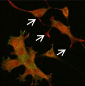 Microscopy image of neurons forming projections called neurites. White arrows indicate the accumulation of proteins called APC, which are required this process. Credit: NICHD/NIH