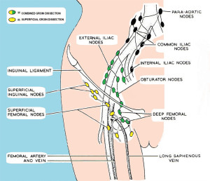Fig1-lymph_nodes-Ophuis