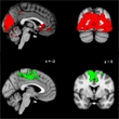 Immediate antidepressant effects on functional brain connectivity