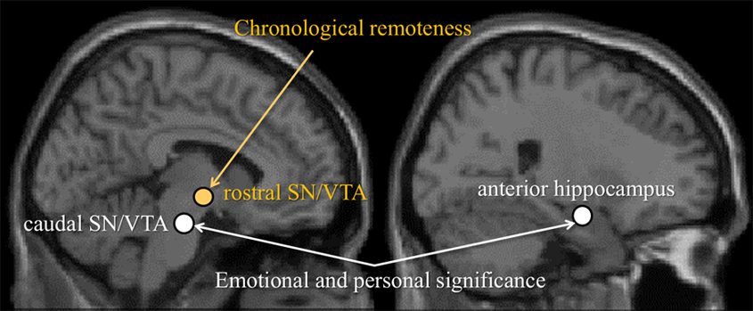"Fig. 1. Two aspects of ""nostalgia"" and brain regions that are correlated with them."