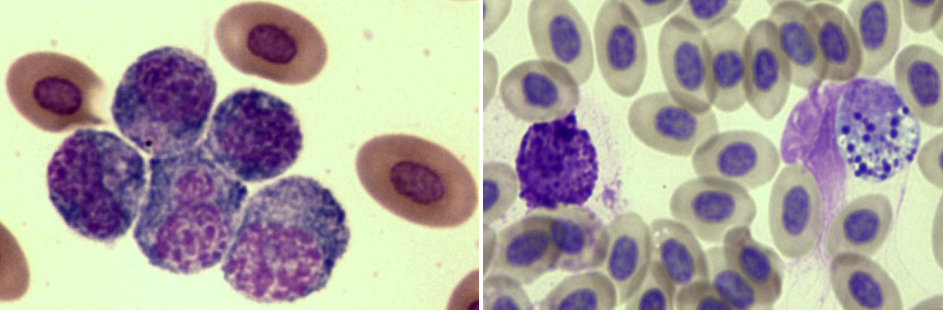"""Left a 5 cell group of large atypical plasmacytes in blood of a 32 wk hen living in an aviary cage. Both the cell architecture and group clustering indicate stress. Right a basophil and a new """"sentinel"""" cell, the """"cyanophil,"""" seen in the blood of a 56 wk hen living in a conventional cage."""