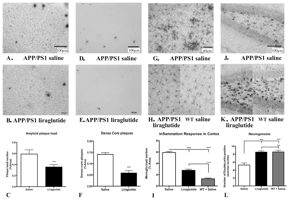 Fig. 1. Liraglutide prevented the development of key Alzheimer biomarkers in the brains of transgenic mice. The amount of amyloid plaques in the cortex is much reduced as compared to the control group. The amount of dense-core amyloid plaques, the ones that induce the chronic inflammation response in the brain, is also kept at a very low level by the drug. Activated microglia, a sign of chronic inflammation, is much lower in the drug group. The inflammation increases oxidative stress and is damaging over time. Finally, the number of new neurons developing is much higher in the drug group. Chronic inflammation prevents stem cells from dividing and differentiating into neurons or glia helper cells.
