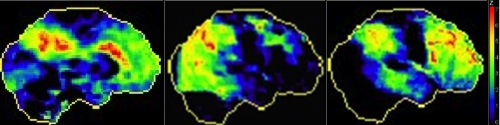 The figure shows the positron emission tomography (PET) scan of three patients with different forms of Alzheimer's disease. Regions in yellow and red represent the most inactive (damaged) regions. At the left, we see the PET scan of a 84 years old patient with insidious memory problems (typical presentation). In the middle, we see the PET scan of a 57 year-old patient with progressive visuospatial problems; we can see the damage extending to posterior brain regions, notably the occipital cortex, responsible for the interpretation of visual inputs. At the right, we see the PET scan of a 51 year-old patients with progressive personnality changes, dishinibition, and inappropriate behaviour; we can see the damage extending to frontal regions, subserving personnality, judgment and complex thinking.