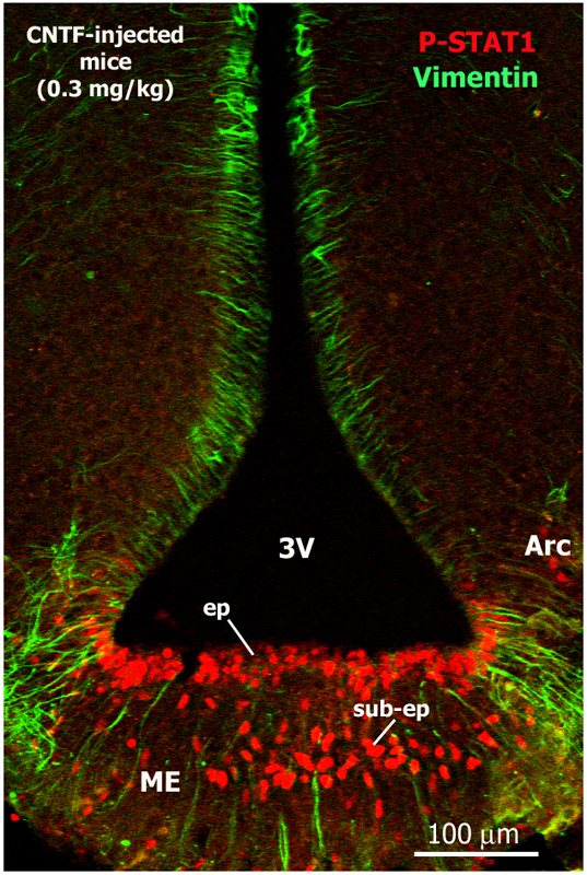 Double-staining immunofluorescence and confocal microscopy analysis of a coronal section of the hypothalamus from a mouse injected intraperitoneally with recombinant CNTF. The median eminence (ME), located at the bottom of the third ventricle (3V), contains numerous CNTF-responsive cells, detected as phospho-STAT1-positive cells (red), in both ependymal (ep) and sub-ependymal (sub-ep) layers. Vimentin (green) is a marker of tanycytes, ependymal cells that border the lower half of the third ventricle. Arc, hypothalamic arcuate nucleus.