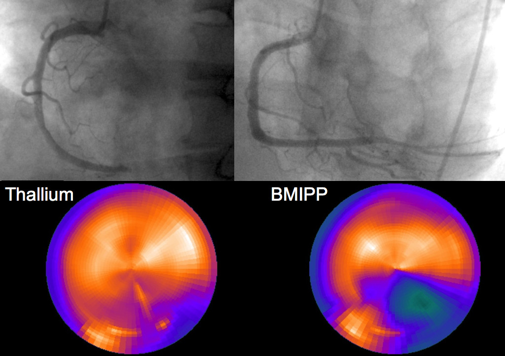 Fig. 1. Coronary angiogram (CAG) before and after the completion of reperfusion therapy and dual-loading scintigraph with thallium-201 and iodine-123 beta-methyl-p-iodophenylpentadecanoic acid (BMIPP) before discharge. Upper left panel: CAG obtained prior to reperfusion therapy. The proximal right coronary artery (RCA) is completely occluded. Upper right panel: CAG obtained after completion of reperfusion therapy. Lower panel: Bull's-eye view of a dual-loading scintigraph obtained before discharge, with thallium-201 and iodine-123 BMIPP. The uptake of thallium by the myocardium in the RCA area is good, in stark contrast to the large defect observed on BMIPP imaging.
