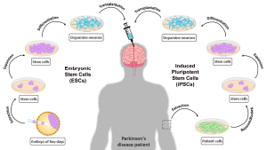 Strategies for generating dopamine neurons from stem cells for transplantation in Parkinson's disease.