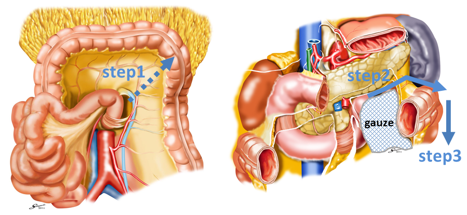 A New Approach In Laparoscopic Colorectal Cancer Surgery Atlas Of