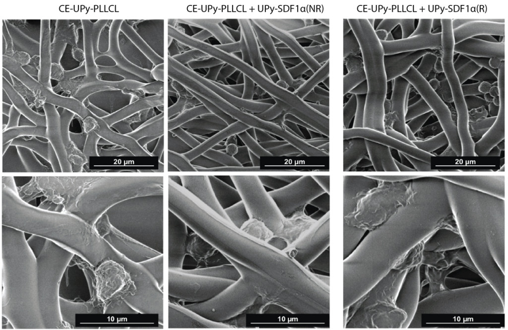 Fig. 1. Scanning electron microscopy of fibers after blood cells were allowed to flow along the material. Cells adhere to the fibers. CE-UPy-PLLCLmaterial has no SDF1a fragments, CE-UPy-PLLCL + UP-SDF1a(NR) and CE-UPy-PLLCL + UP-SDF1a(R) do contain fragments of SDF1a.