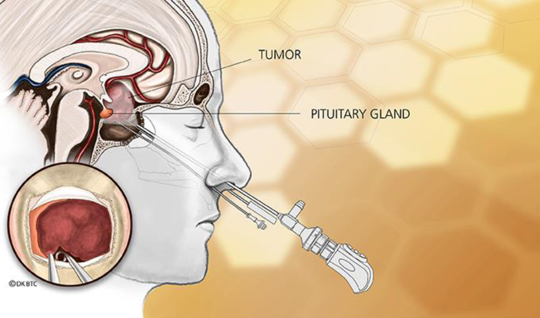 The Resilient Pituitary Gland What Happens When The Pituitary Gland