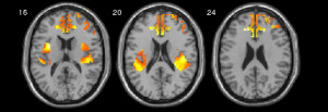 Fig.1. Response of the anterior cingulate cortex and the amygdala to negative emotional stimuli.