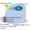 Metabolism and pheochromocytoma/paraganglioma