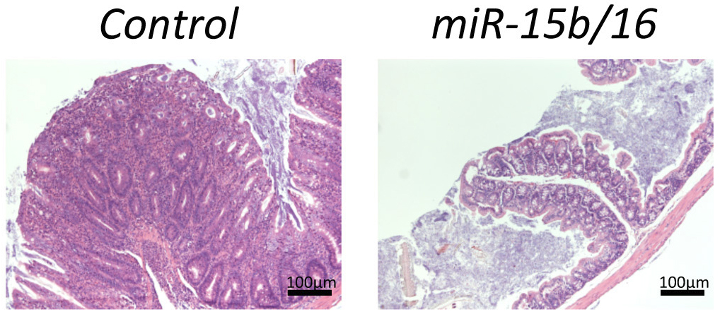 Fig. 1. Histology sections from the colons of mice prone to autoimmunity. Overexpression of miR-15b and miR-16 in T cells results in a significant reduction in the thickening of colon tissue and its inflammation.
