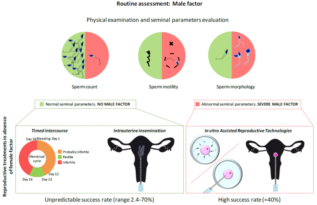 Fig. 1. Standard clinical care of infertile couples based on male fertility status. The evaluation of male infertility factor is based on a physical examination and sperm parameters analysis including sperm concentration, motility and morphology. Reproductive treatments with minimal intervention are recommended in absence of a known female factor and if all seminal parameters are within the range of normal values (green box). These less invasive treatments included timed Intercourse (TIC) that identify the days of the menstrual cycle when the woman could become pregnant and intrauterine insemination (IUI) based on the injection of sperm inside a woman's uterus increasing the number of sperm that reach and could fertilize the oocyte. In comparison, invasive in vitro assisted reproductive technologies (ART) are recommended if the semen sample has a very low sperm concentration or the sperm has aberrant motility or morphology. In vitro fertilization combines a sperm and an oocyte outside of the body in a laboratory dish with or without the help of intracytoplasmic sperm injection. One or more fertilized eggs that start to develop may then be transferred into the woman's uterus.