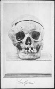 Fig. 1. Beethoven skull photograph (1863 with permission from Austrian National Library).