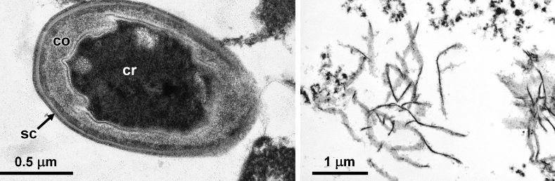 Fig. 1. TEM images of Geobacillus stearothermophilus before and after alkaline treatment (sc, spore coat; co, cortex; cr, core).