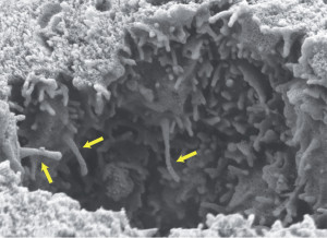 Fig. 1. Primary cilia, indicated by yellow arrows, protruding into the airways of an embryonic mouse lung. Image courtesy of Christian Gojak, Tucker laboratory.