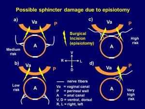 Fig 1. Schematic diagram of episiotomy and possible damage to the anal sphincter innervation.