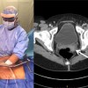 A treatment option for laparoscopically-resected uterine leiomyosarcoma with morcellation