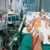 Extracorporeal life support in polytraumatized patients