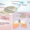 The many faces of macrophages in lung cancer
