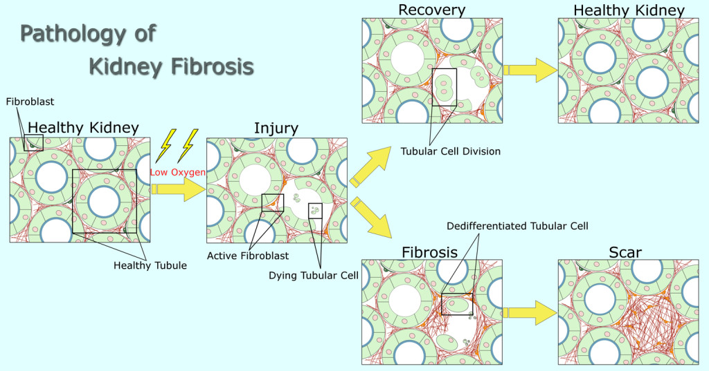 Regeneration and development of fibrosis in the kidney
