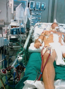 Fig. 1. The poly-trauma patient's setting during ECLS.
