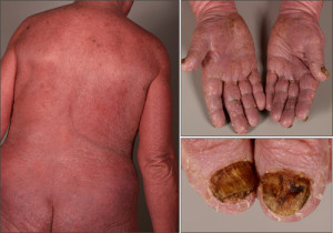 Fig. 1. Clinical appearance of Sézary Syndrome: erythroderma with involvement of hands and nails.