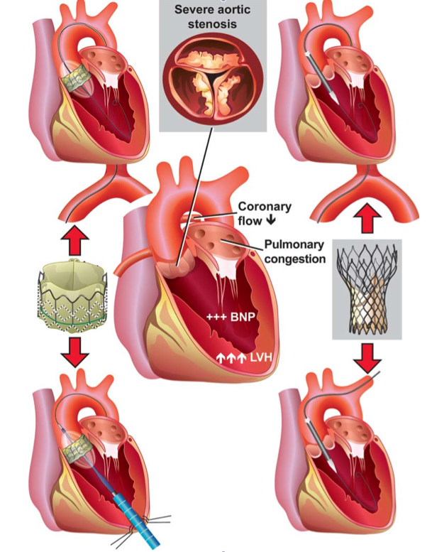 aortic stenosis and transcatheter aortic valve implantation