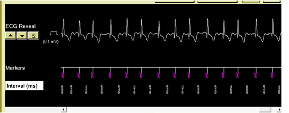 Fig. 2. Example of ECG reading from the Reveal LINQ device (From Pürerfellner H, et al. Heart Rhythm 2015, 12:1113-1119).