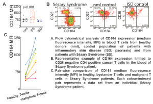 Fig. 2. The amount of CD164 molecules is increased on T cells from Sézary Syndrome patients.