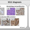 Diagnosis of small cell lung carcinoma metastases