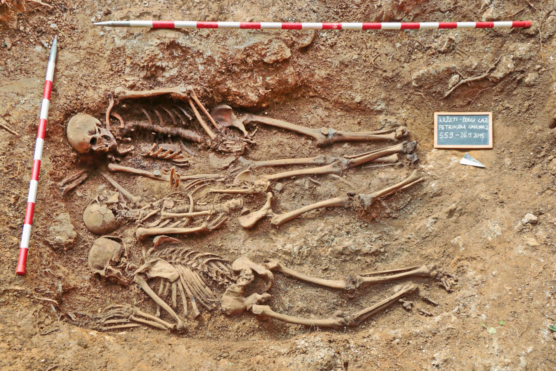 identification of old and contemporary human skeletal remains, Skeleton
