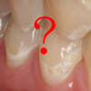 Is there a place for Tooth Mousse in the prevention and treatment of early tooth decay?