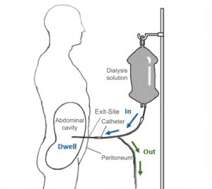 Fig. 1. Peritoneal Dialysis, adapted and modified from National Institute of Diabetes and Digestive and Kidney Diseases.