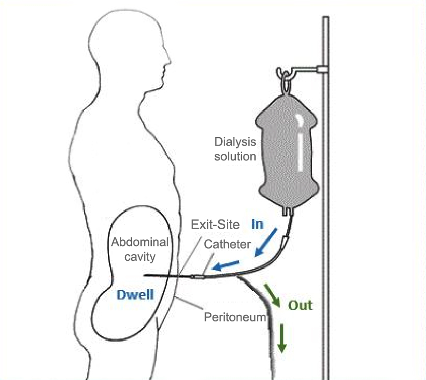 Should we use gentamicin cream to prevent exit site infection in peritoneal dialysis adapted and modified from national institute of diabetes and ccuart Images