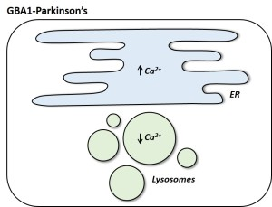 Fig. 2. Calcium levels inside the ER of GBA1-Parkinson's patient cells are increased, whereas lysosomal levels are reduced. GBA1-Parkinson's cells also have enlarged and clustered lysosomes.