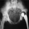 Massive septic pelvic osteolysis following revision total hip arthroplasty in a patient with sickle cell anemia