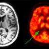 Metabolic imaging is new a tool to investigate blood-brain barrier in Alzheimer disease